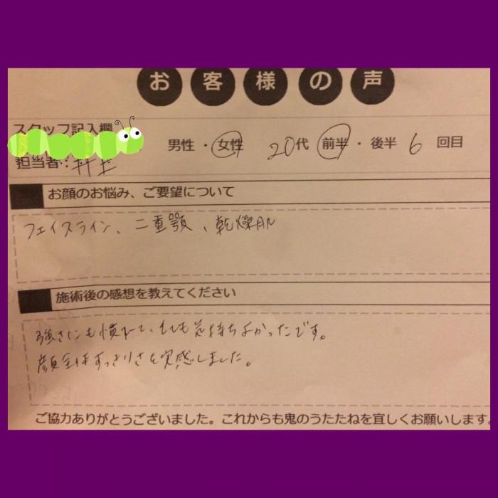 小顔モニターアンケート_170823_0016