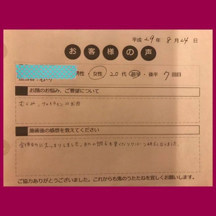 小顔モニターアンケート_170830_0001